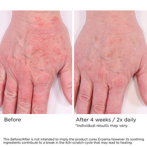 Eczema Cream, Soothing Skin Treatment with 1% Collodial Oatmeal to Relieve Eczema and Similar Skin Irritations
