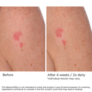 Soothing Skin Treatment Cream with 1% Colloidal Oatmeal to Relieve Eczema, Skin Irritations or Post Treatment Skin