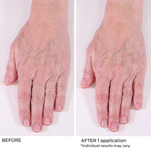 Hand Treatment Cream - Anti Aging, Hydrate, Brighten, Even Skin Tone, Fragrance Free