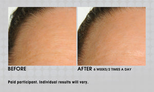 Forehead Line Eraser - Smooth, Firm and Improve Collagen Production