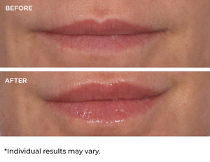 Hydro-Screen™ for Lips Vanilla - Hydrate, Volumize, Rejuvenate, Plump, Shine!