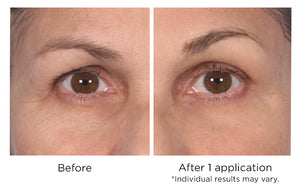 Quickfix Wrinkle Reducing Serum - Instantly and Immediately Blur Fine Lines and Wrinkles and Undereye Fatty Bags