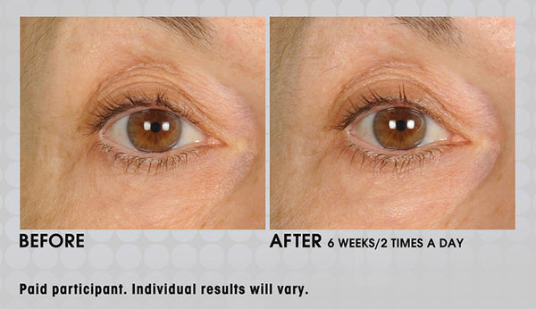 Anti-Aging Under Eye Cream
