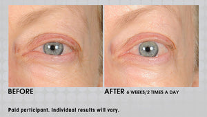 Under Eye Cream Infused with Powerful Peptides for Immediate and Long Term Puffiness & Wrinkle Reduction