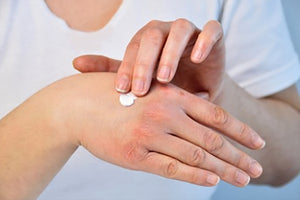 Antihistamines Could Be Drying Your Skin