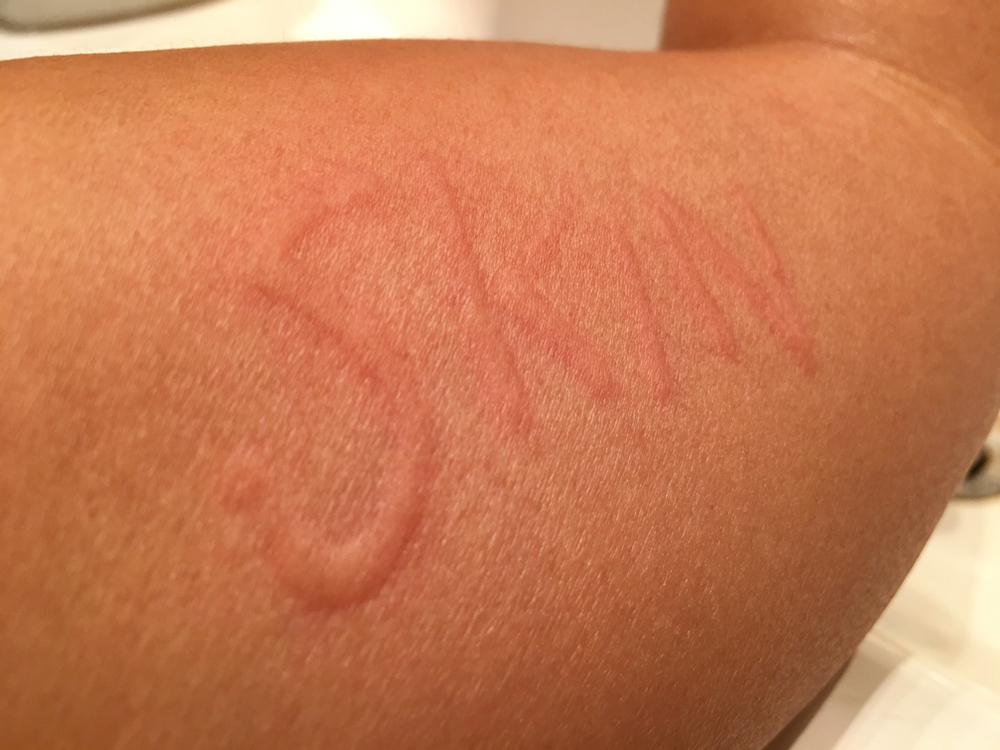 Prevent Dermatographia From Itching Too Much