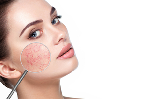 Treating Rosacea the Natural Way