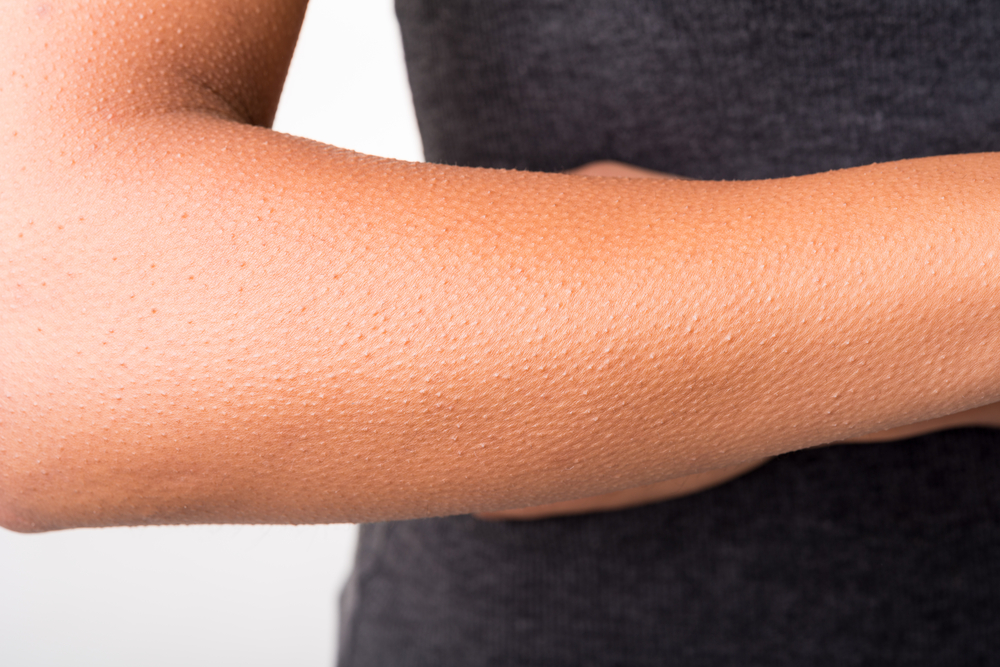 Dealing with Keratosis Pilaris this Winter