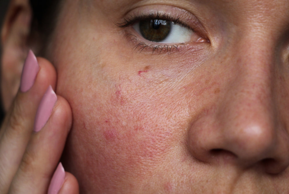 6 Signs You Have Sensitive Skin