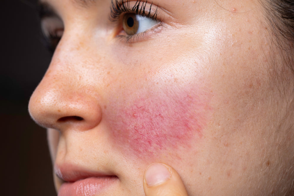 LET'S FACE IT: Rosacea and face masks