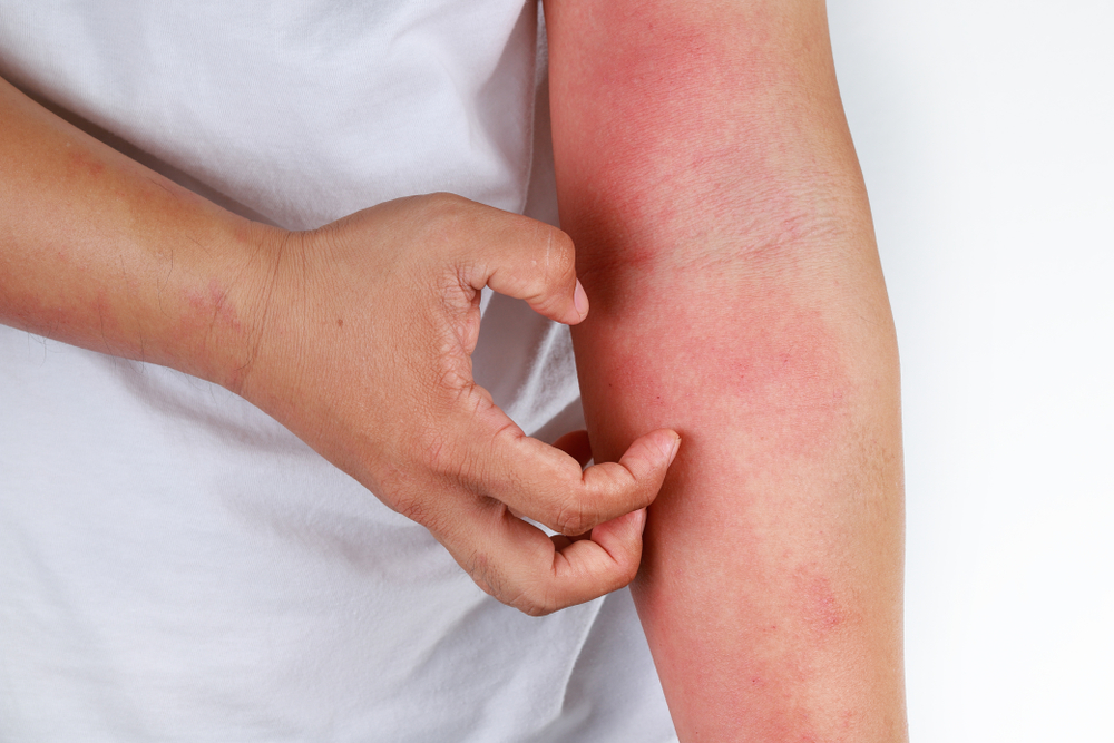 Skin Rash That May Be Cancer Cottonique Allergy Free Apparel