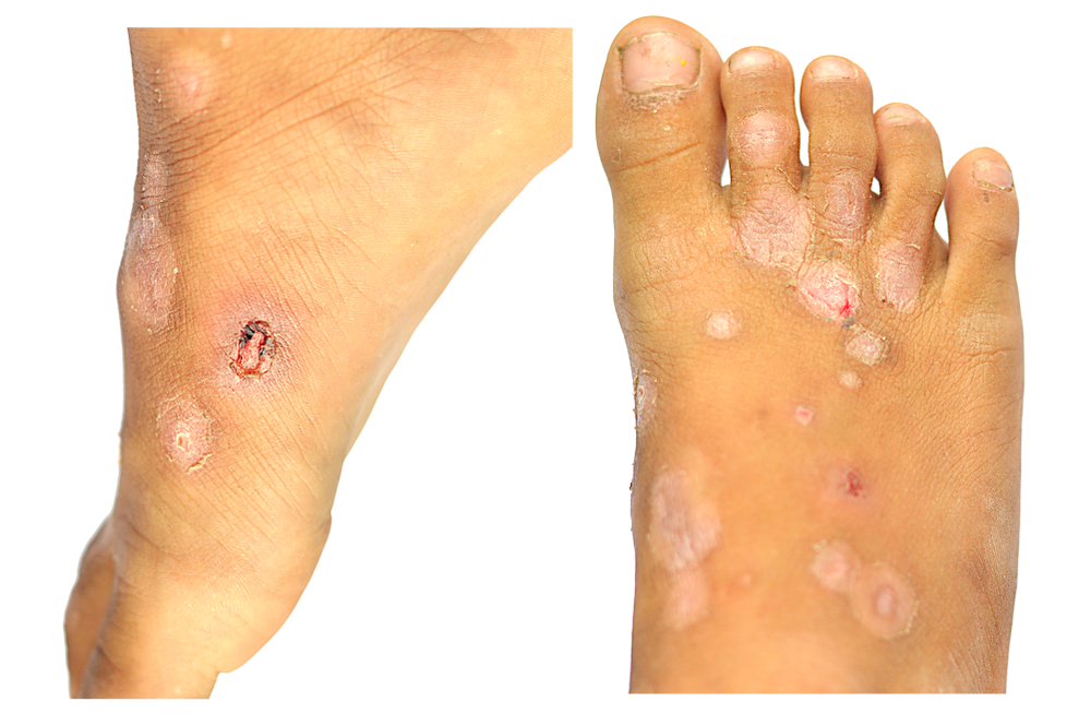 scabies on feet