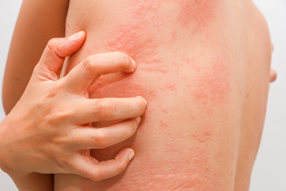 That-Time-of-the-Month Hives: What Women Need to Know