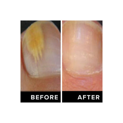 Anti-Fungal Nail Serum