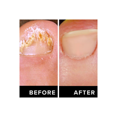 how to cure nail fungus