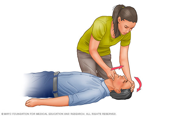 cpr-tilt-head-illustration-8col-3678934-2a