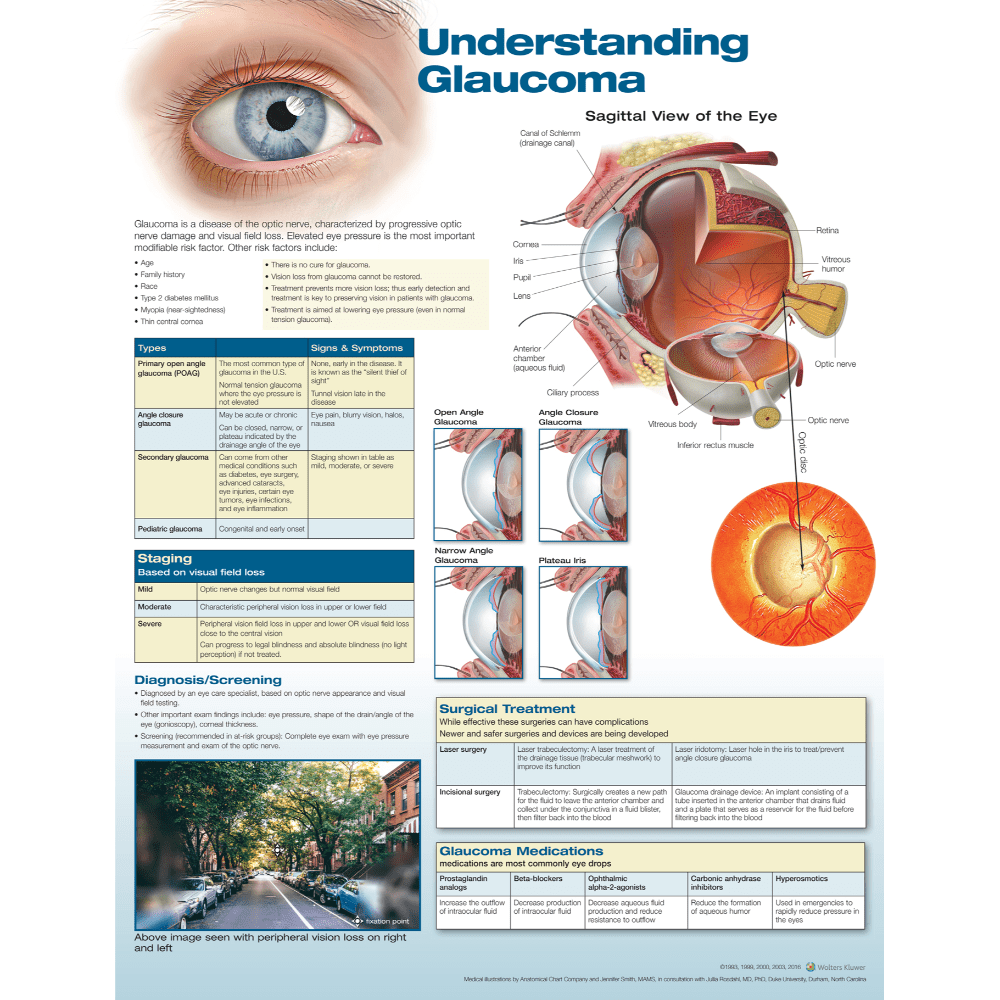 Anatomical Chart Company Anatomical Charts Understanding Glaucoma