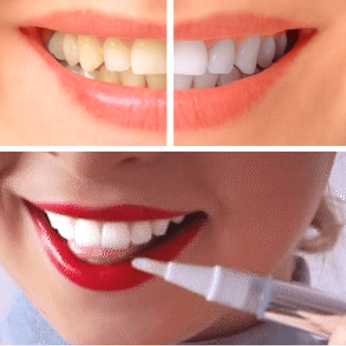 #1 Teeth Whitening Pen - Perfect Smile