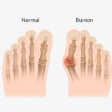 2 Pack: Comfort Healing Toe Separators and Bunion Spacers