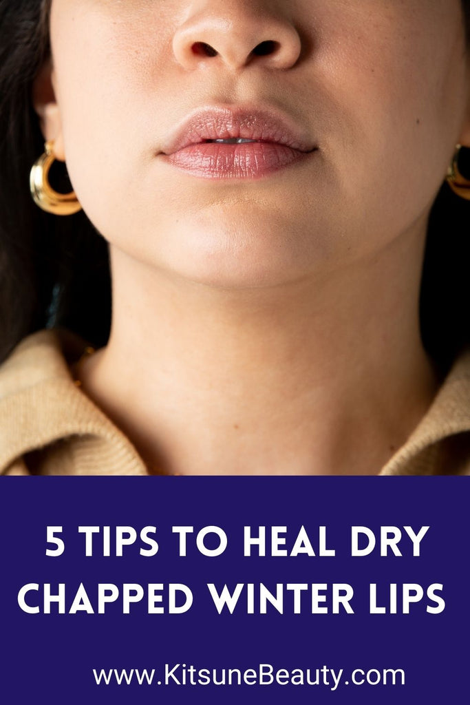 5 Tips To Heal Dry Chapped Winter Lips
