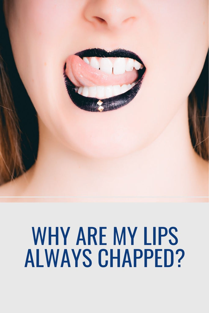 Why are my lips always chapped?