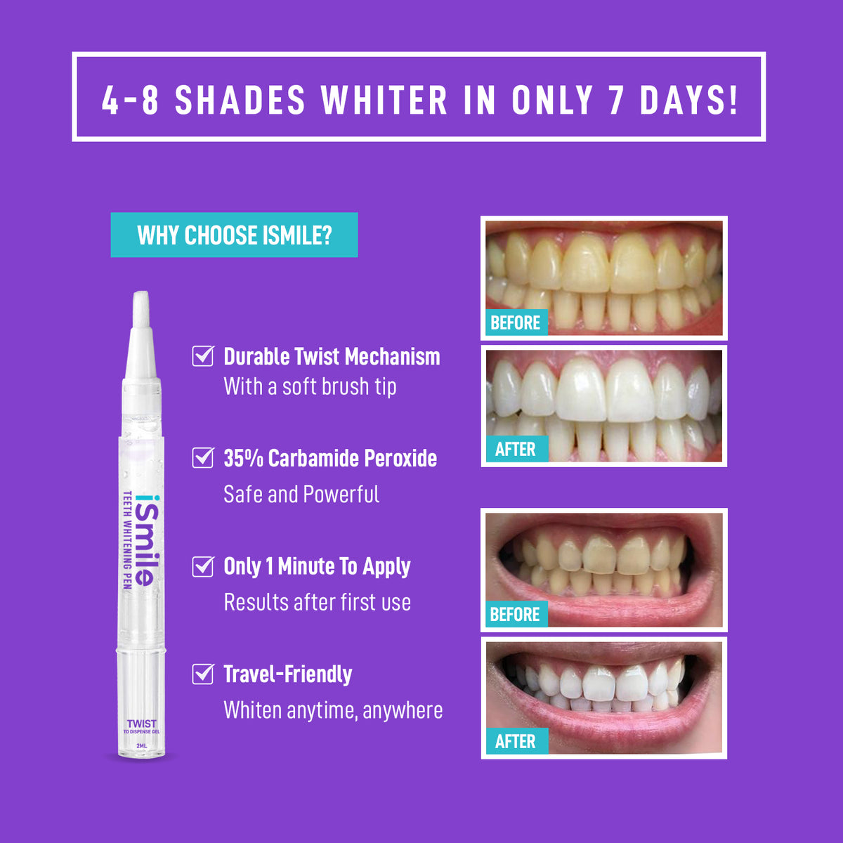Ismile Teeth Whitening Pen Ismile Whitening