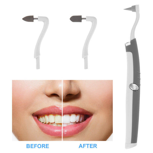 PrettySee Teeth Stain Eraser Kit Electric Cleaning 3 Polishing Heads - PrettySee Beauty & Personal Care | Professional, High Quality | PrettySee