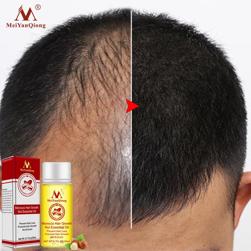 New 2019 Stop Hair Loss Treatment