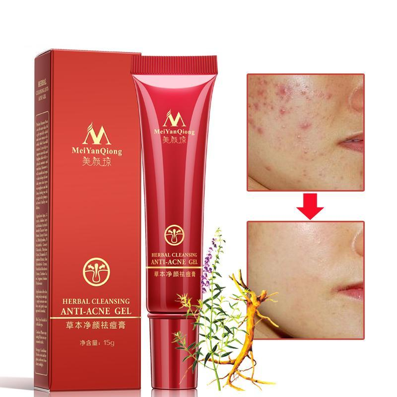 Herbal Anti-acne Scar Removal Gel