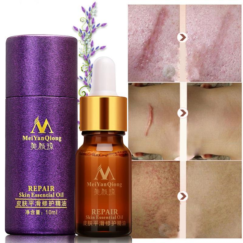 Skin Repair Essential Oil With Lavender Essence