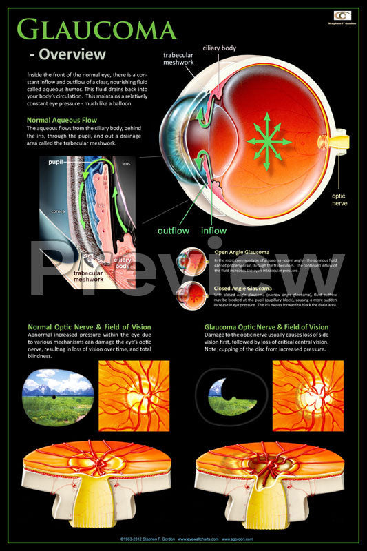 Glaucoma Overview Poster