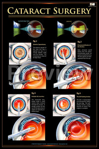 Cataract Surgery Poster
