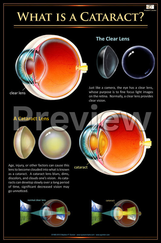 Cataract Overview Poster