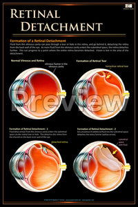 Retinal Detachment Poster