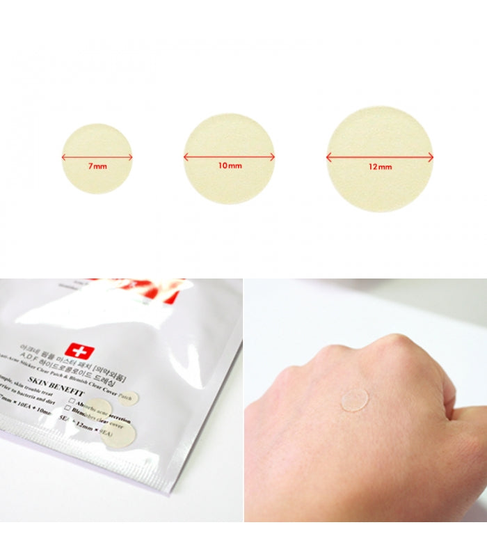 Parches para el Acné - Acne Pimple Master Patch