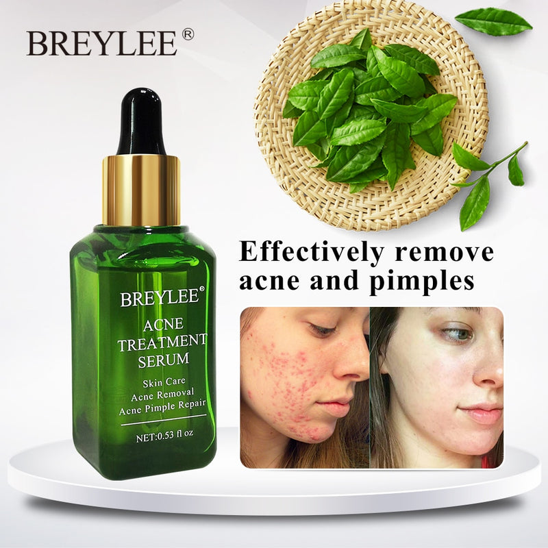 Breylee acne treatment serum - Oveya
