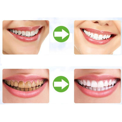Instant-White Activated Charcoal Teeth Whitening Powder