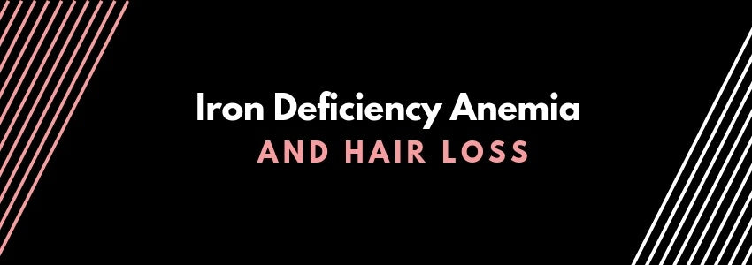 Iron Deficiency Anemia and Hair Loss