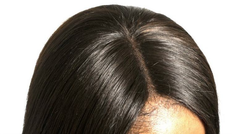 Lace-Closure-Installed