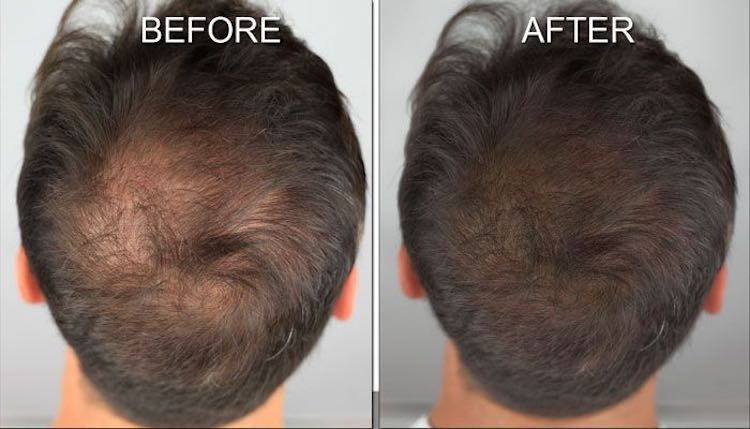 male-diffuse-hair-loss-pigmentation