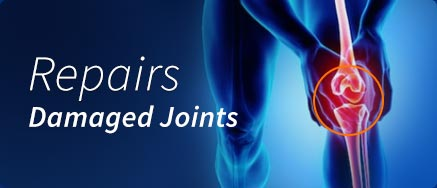 Repairs Damaged Joints