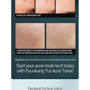 Moisturizer & Treatment - [Pyunkang Yul] Acne Toner - Тонер для проблемной кожи - Adelline Beauty