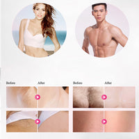 IPL Laser Hair Removal Handset - Health & Beauty - Proshot Bazaar