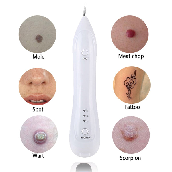 Laser Mole, Wart, Freckles & Tattoo Removal Pen
