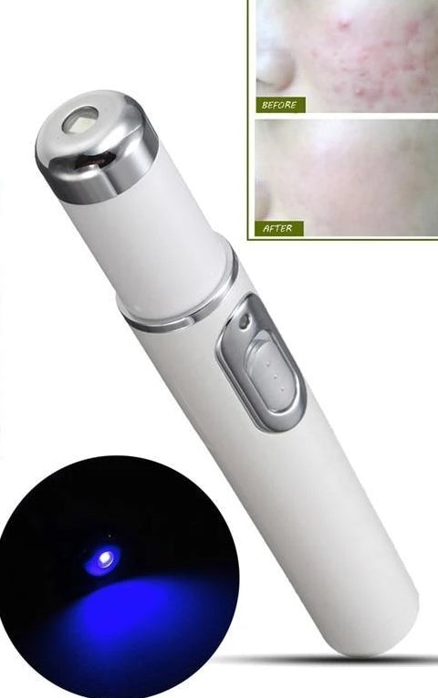 Acne Laser Pen Blue Light Therapy - SkinGenics ™ Online Shop