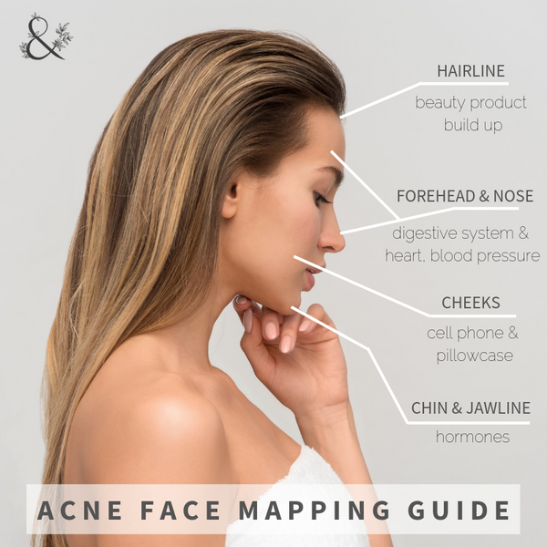 acne face mapping guide | Acne Face Mapping: Where You Breakout Means Something