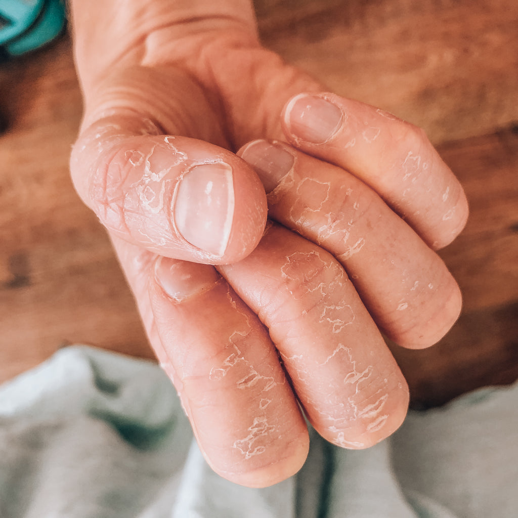 5 Ways To Protect And Repair Dry Hands