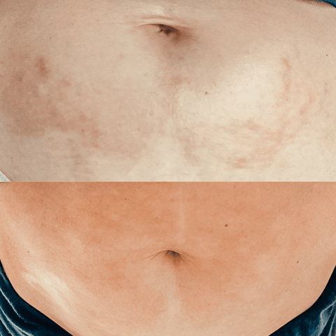 Natural Ways to Fade Post-Pregnancy Stretch Marks