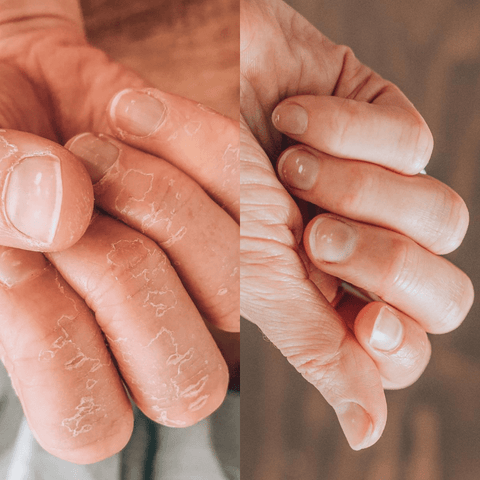 argan-oil-for-skin-dry-hands-benefits-before-and-after-youforher
