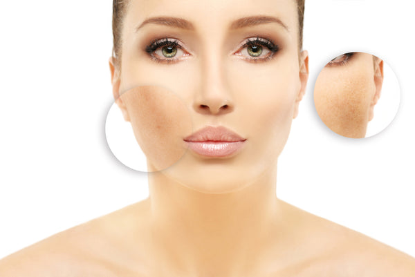 hyperpigmentation causes and treatments